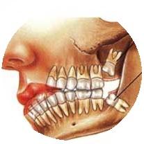 a gudrobas zobs