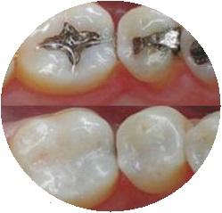 zobu atjaunosana